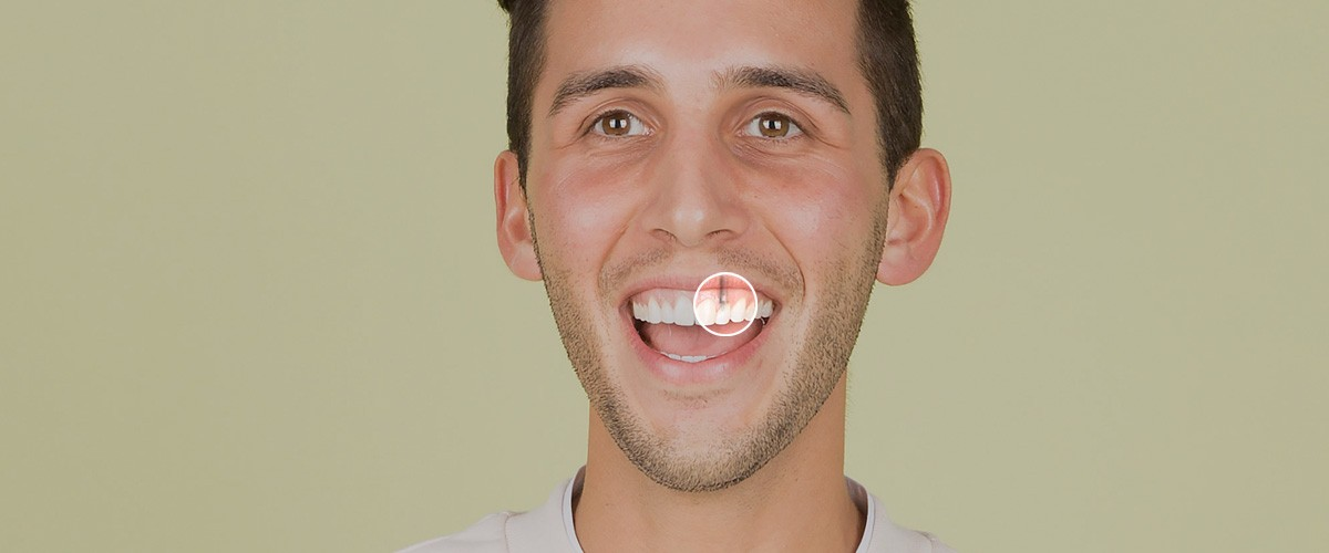 Dental Implants at River City Dental