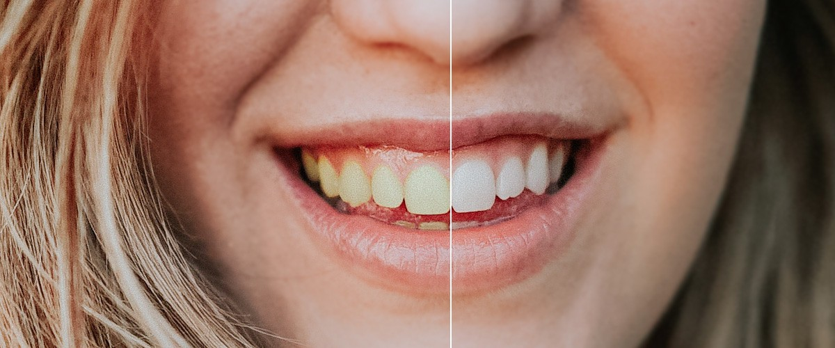 Teeth Whitening at River City Dental St Cloud MN